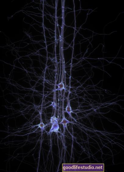 Neurální akce spojená s posttraumatickou stresovou poruchou