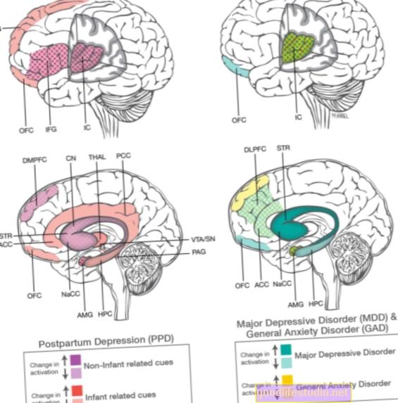 肥満と闘うための神経生物学的アプローチ