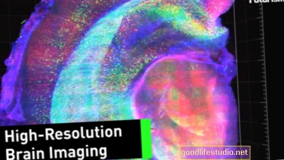 新しい脳イメージング技術は恐怖を減らすのを助けるかもしれない