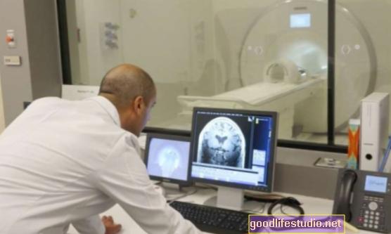 La nueva técnica de resonancia magnética puede mejorar el diagnóstico de la demencia