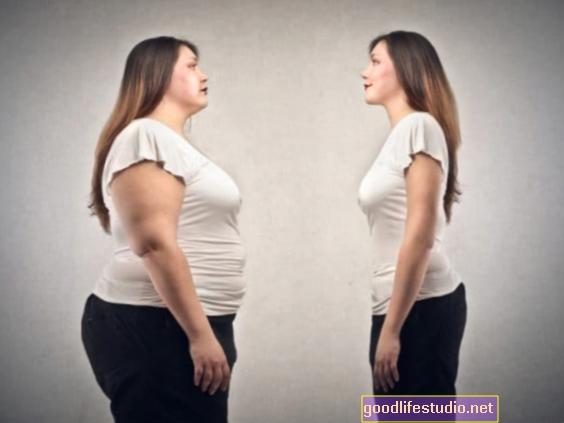 """Нова студија подрива """"парадокс гојазности"""""""
