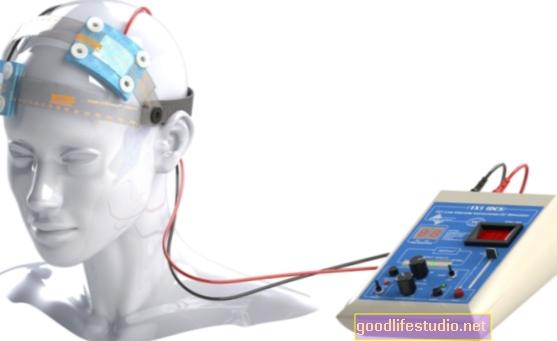Nema dokaza Električna stimulacija mozga pomaže u spoznaji