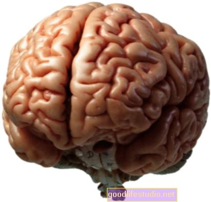 Otak Kita Berubah Seiring Usia Kita