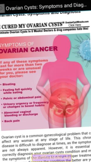 Gejala Cyst Ovari yang Dimudahkan oleh Perubatan Gaya Hidup Sihat