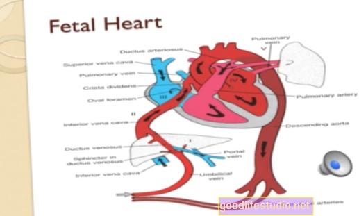 Педиатричните сърдечни проблеми могат да увеличат риска от ранна деменция