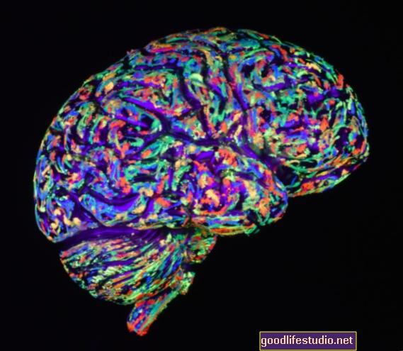 Persepsi Dementia sebagai Penyakit Menyeret Orang