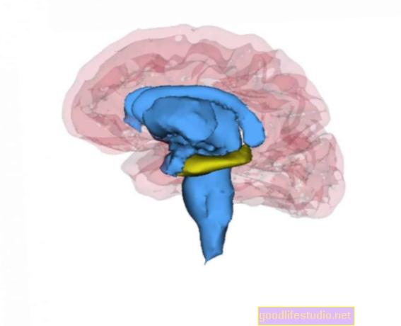 Depresión recurrente vinculada a un hipocampo más pequeño