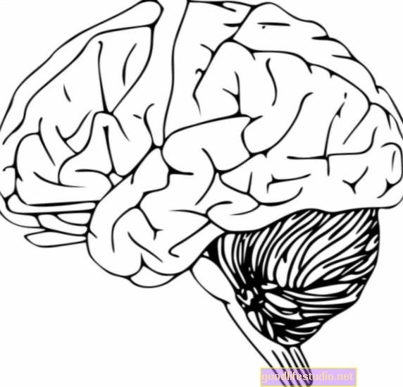 A kutatás rávilágított a Parkinson-kór eredetére