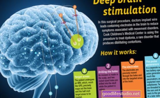 La búsqueda de conocimientos estimula la salud del cerebro