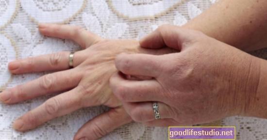 Bolest kože s kroničnim svrbežom povezanim s depresijom, samoubilačkim mislima