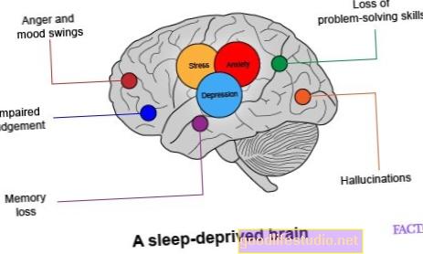 Az alváshiány miatt az agysejtek lassúvá válnak