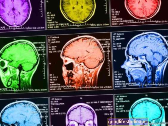 Társadalmi támogatás pufferelheti a korai életbetegségek agyi hatásait