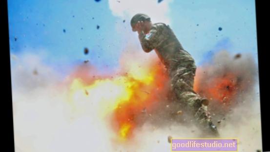 Los soldados cercanos a la explosión pueden sufrir lesiones cerebrales, incluso sin síntomas