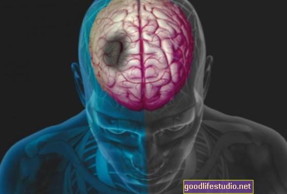Accidente cerebrovascular, enfermedades vasculares identificadas como factores de riesgo en el desarrollo de la demencia