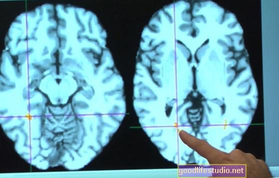 Проучване открива ключов мозъчен регион, който свързва паметта и емоциите