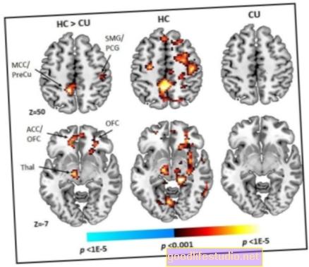 Un estudio investiga las regiones del cerebro vinculadas a acciones compulsivas