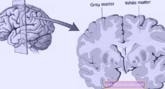 Un estudio muestra que la densidad de la materia gris aumenta en la adolescencia