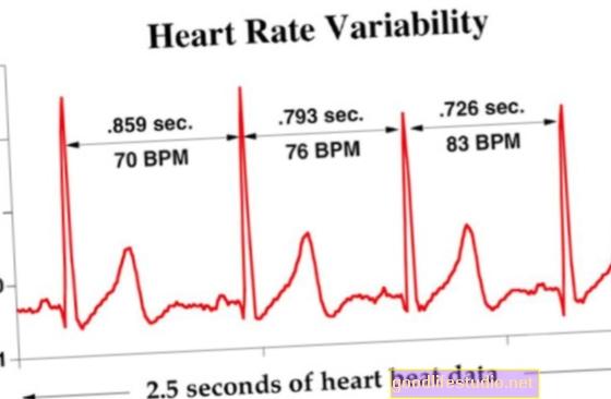心拍数の変動によりPTSDのリスクが増加する