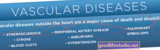 Enfermedades vasculares en el cerebro relacionadas con el Alzheimer