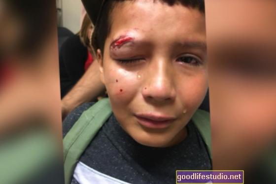 Perché i bambini vengono vittime di bullismo