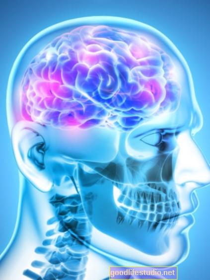 Nuliranje stimulacije mozga za depresiju