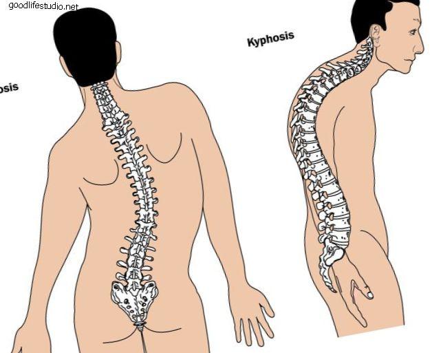 Scheuermann's Kyphosis (Bệnh Scheuermann): Độ cong bất thường của cột sống