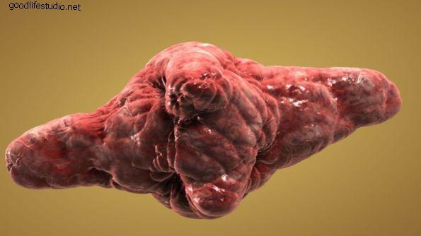 Causas de los tumores espinales