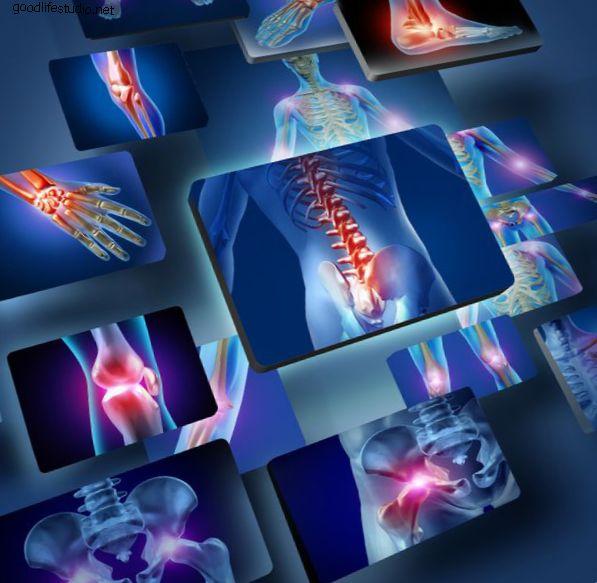 Словарь ревматоидного артрита