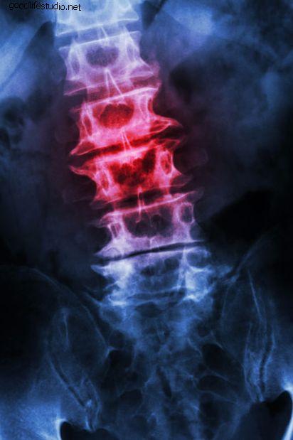 Espondilosis