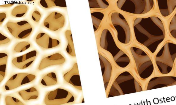 Ho l'osteoporosi e ho bisogno di un intervento chirurgico alla colonna vertebrale, quali sono le prospettive?