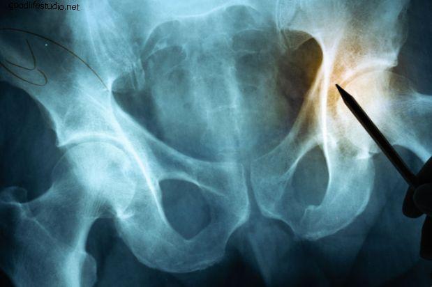 Vai tas ir muguras vai gūžas sāpes?  Nokļūšana problēmas sākumā