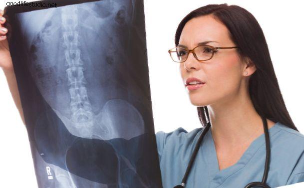 Spondiloze (mugurkaula artrīts): samaziniet muguras un kakla sāpes