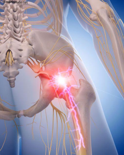 6 основных причин боли в ишиасе и седалищном нерве