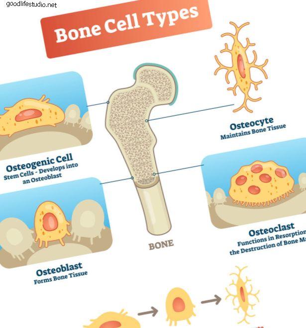 La estimulación del crecimiento óseo ayuda a superar los factores de riesgo de la fusión espinal