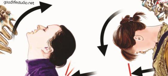 Хиропрактика Уход за хлыстом