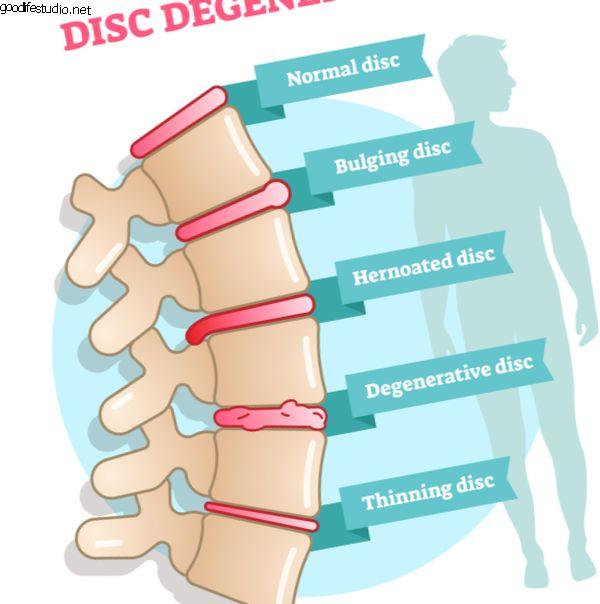 Причины дегенеративного заболевания диска
