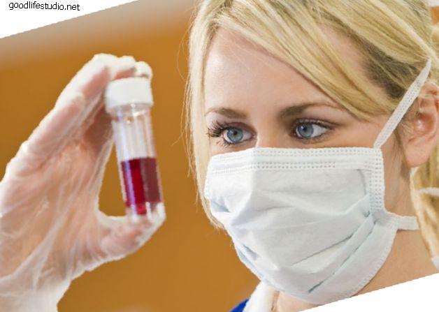 Kraujo tyrimas gali numatyti reumatoidinį artritą