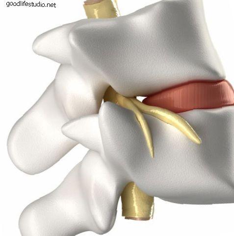 Анатомия переломов позвоночника