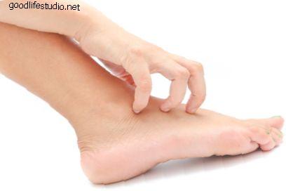 Какви са суеверията за сърбящите крака?