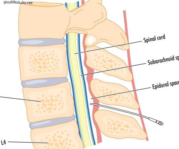 Injection épidurale sélective diagnostique et thérapeutique (transforaminale)