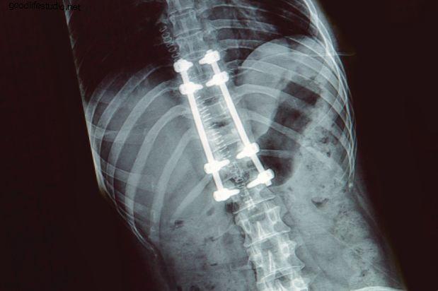 Удаление спинномозговых инструментов: плюсы и минусы