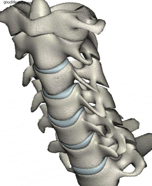 Kirurgija cervikalnog umjetnog diska