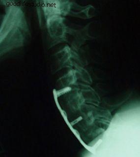 Cervikalne ploče: pružaju stabilnost vrata koristeći instrumente kralježnice
