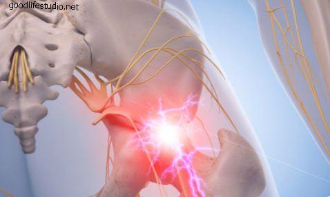 坐骨神経痛の救済:硬膜外ステロイド注射または経口ステロイド?