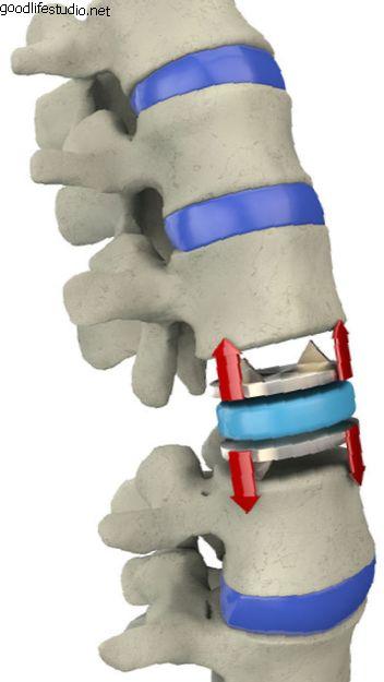 人工椎間板および変性椎間板疾患