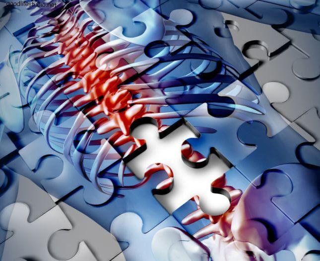 Стимуляция спинного мозга для контроля хронической боли в спине