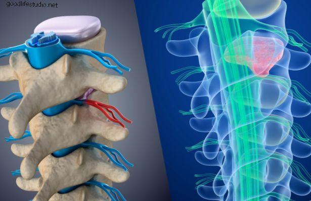 Foraminotomy: Prosedur Pembedahan Spinal