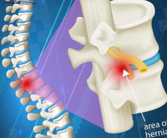 Эпидуральные инъекции для уменьшения боли от защемления нервов