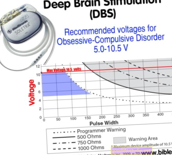 Hluboká mozková stimulace, OCD a cukrovka