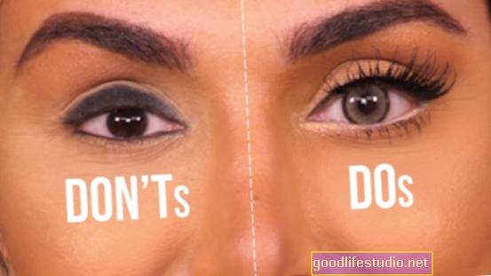 Ar jūsų akys jus atleidžia?